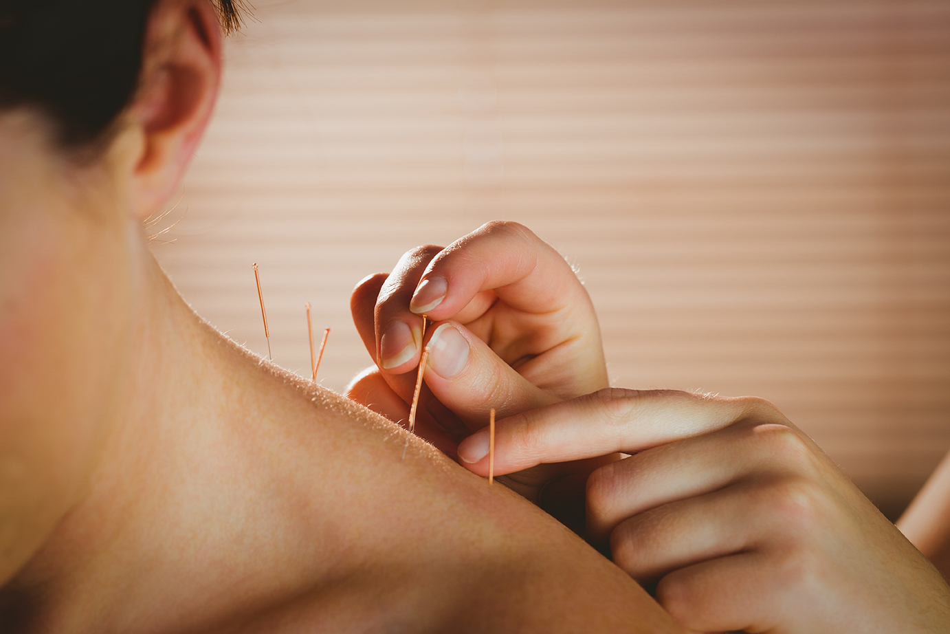 Acupuncture treatment is available at The Dawn rehab centre in Thailand