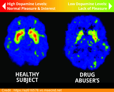 dopamine levels in a person's brain is one of the risk factors for addiction