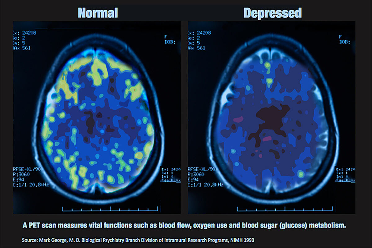 the comparing pictures between normal brain and depressed brain.